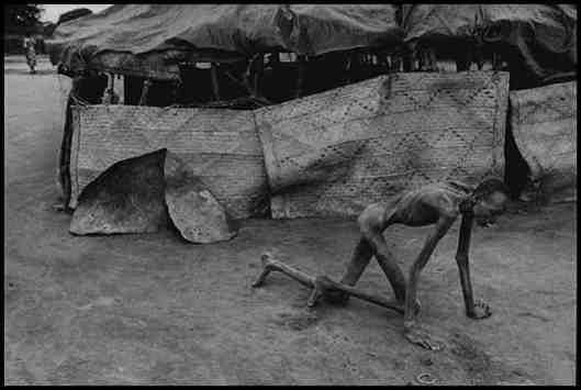 Famine-Victime-in-Sudan-1993e.jpg